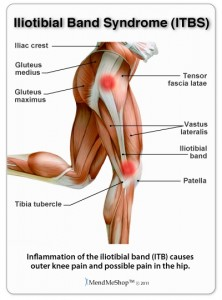 Iliotibial band syndrome 222x300