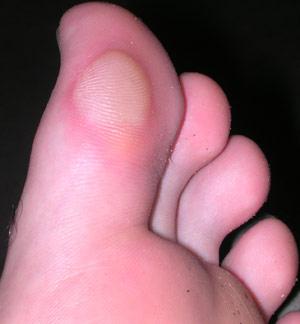 blister care feet