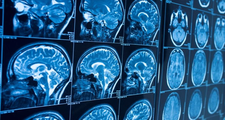 A wall of radiology scans showing a person's brain
