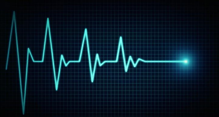 Echocardiogram going from beating to flatline