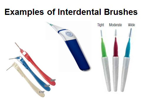 Interdental brushes can be used to clean between the teeth, under bridges, and around implants and braces.